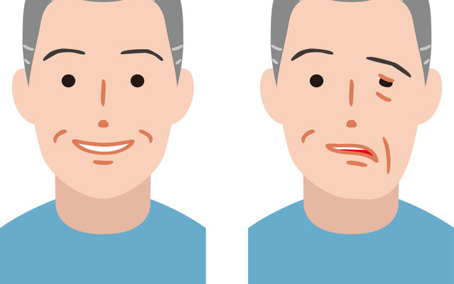 顔面神経麻痺と鍼灸